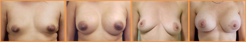 Asymmetrical Breast Correction