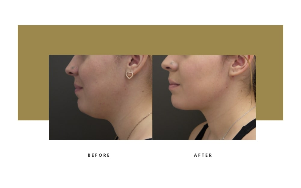 Submental Liposuction Before and After