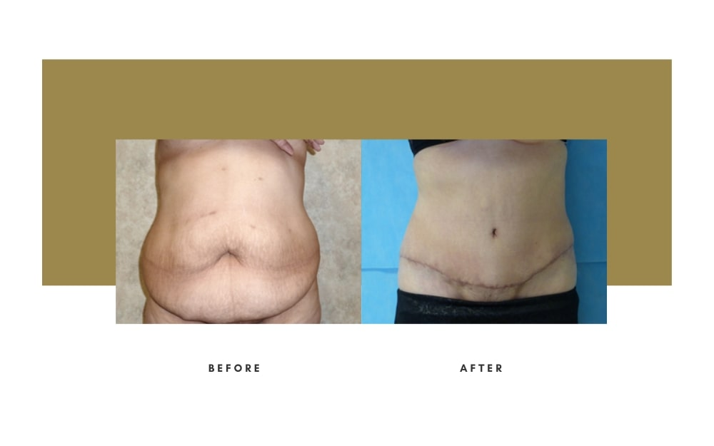 Abdominoplasty Before and After 1