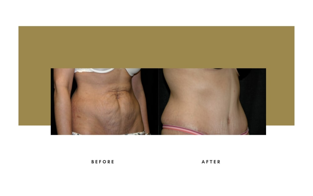 Abdominoplasty Before and After 10