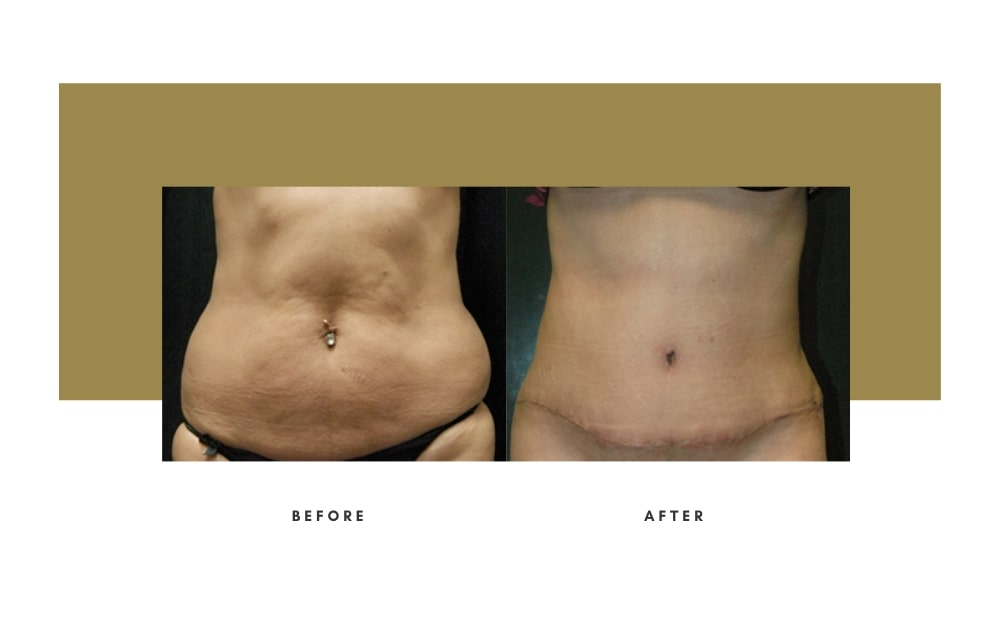 Abdominoplasty Before and After 11