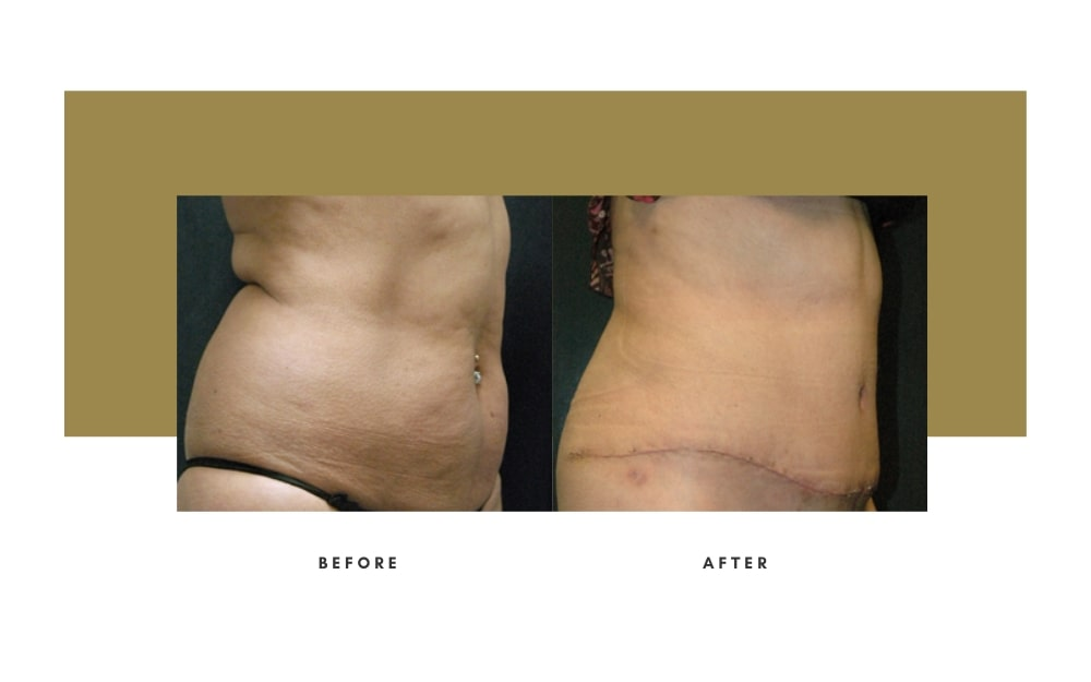 Abdominoplasty Before and After 12