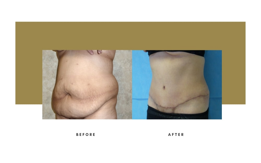 Abdominoplasty Before and After 2