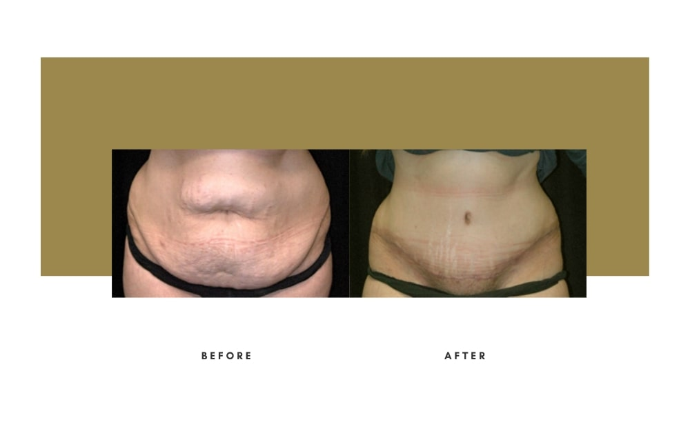 Abdominoplasty Before and After 3