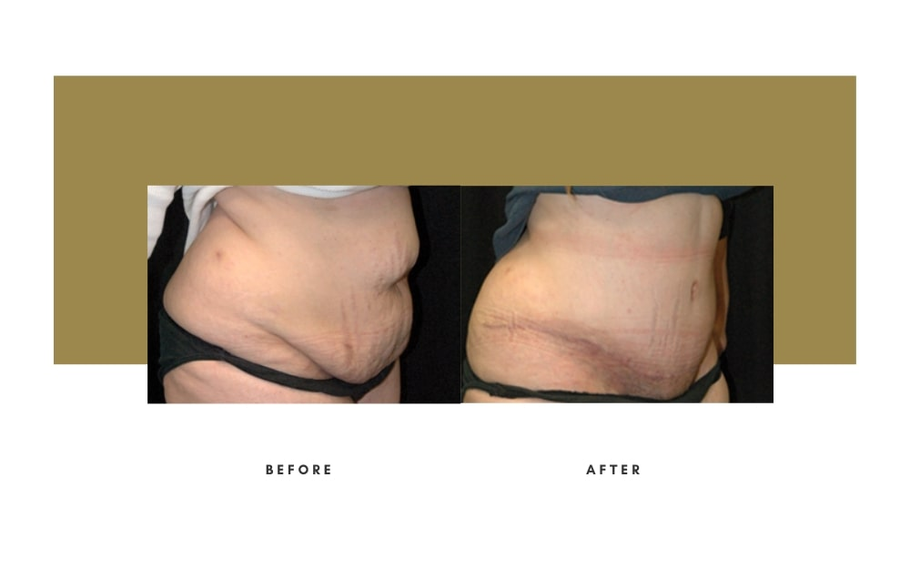 Abdominoplasty Before and After 4