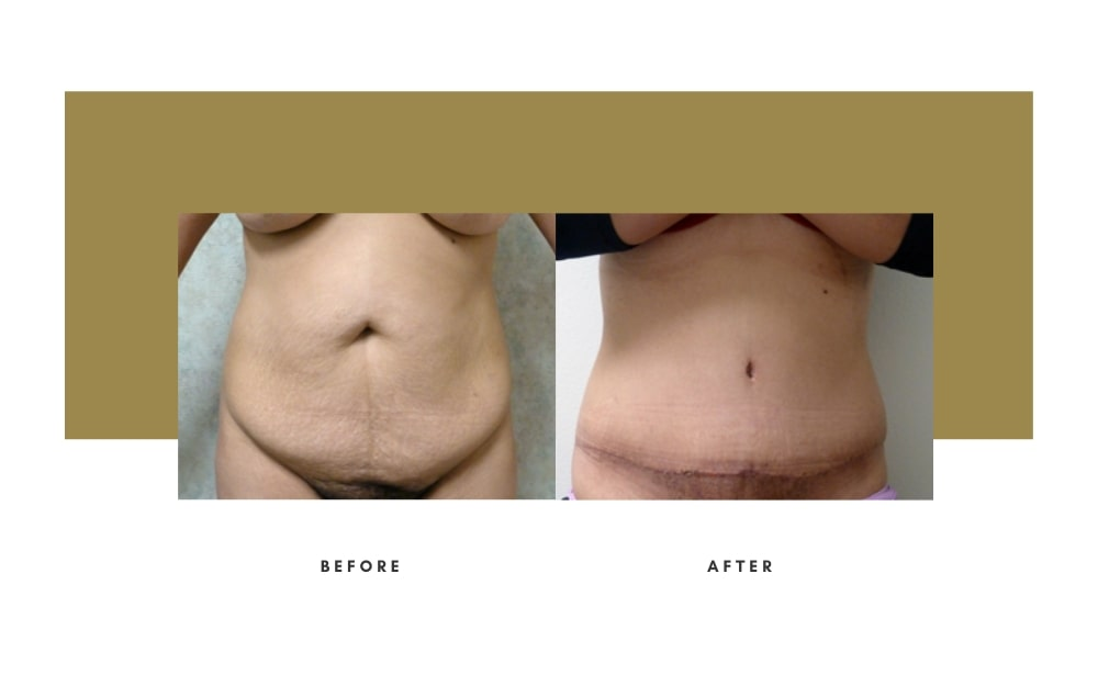 Abdominoplasty Before and After 5