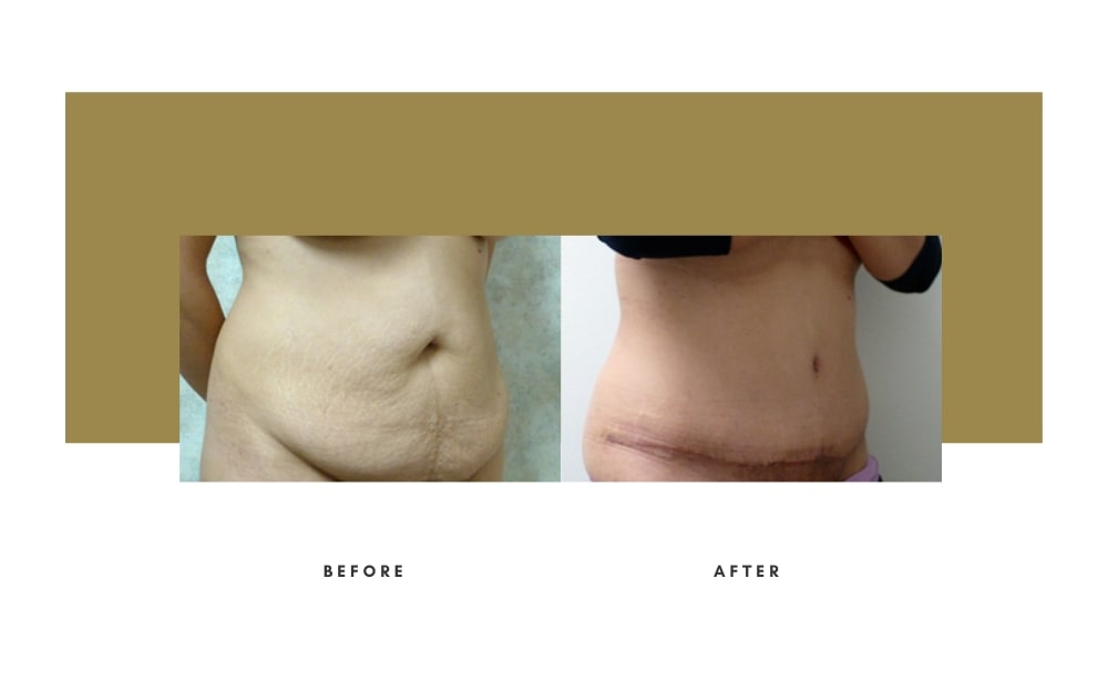 Abdominoplasty Before and After 6