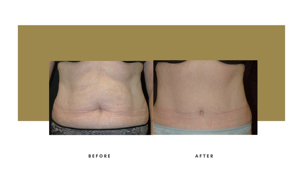 Abdominoplasty Before and After 7