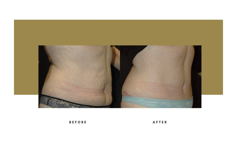 Abdominoplasty Before and After 8