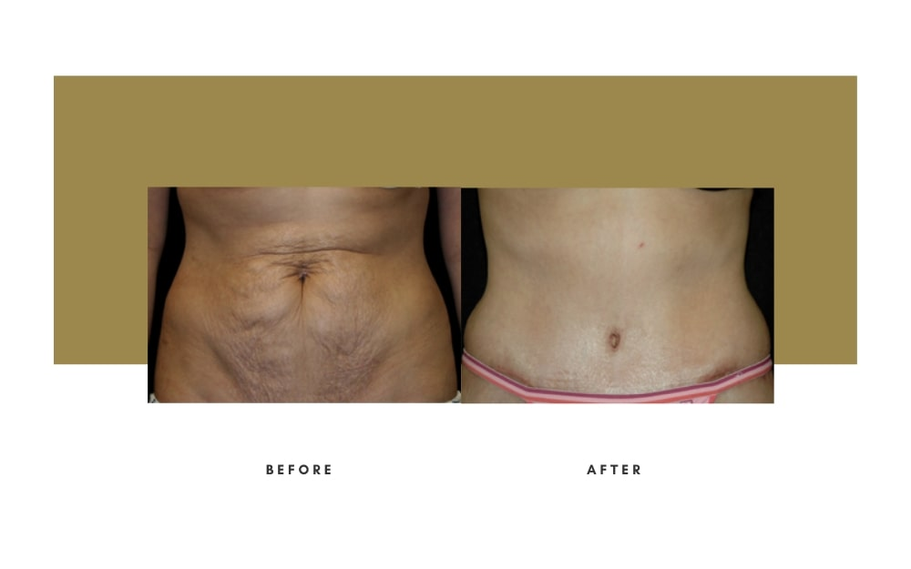 Abdominoplasty Before and After 9