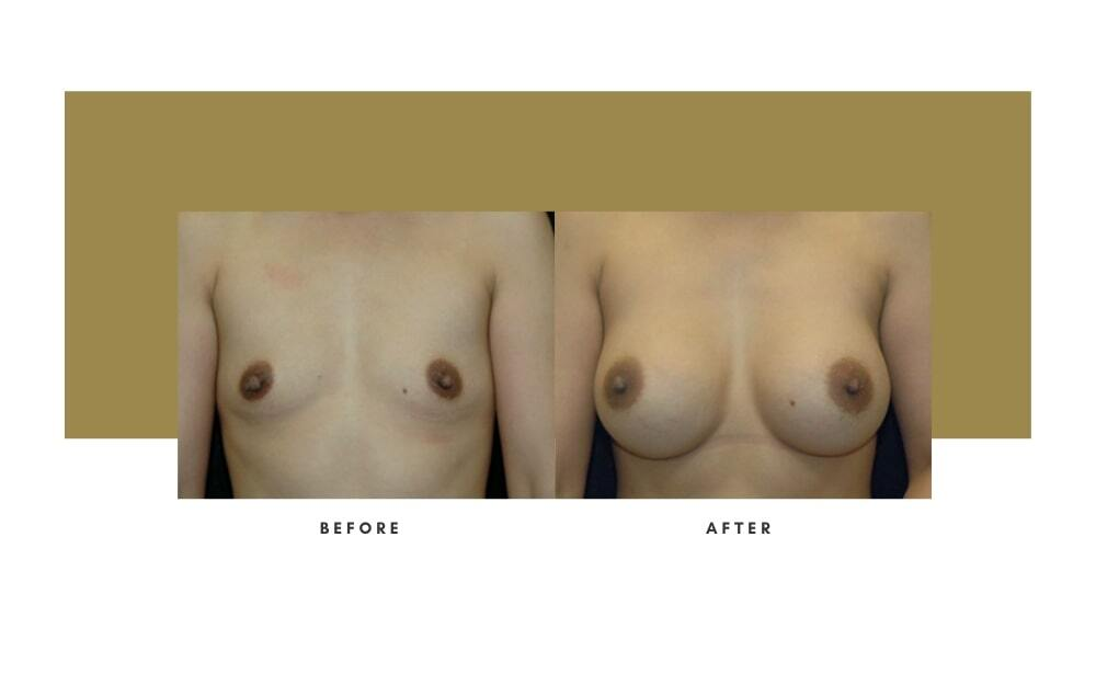 Breast Augmentation Before and After 2