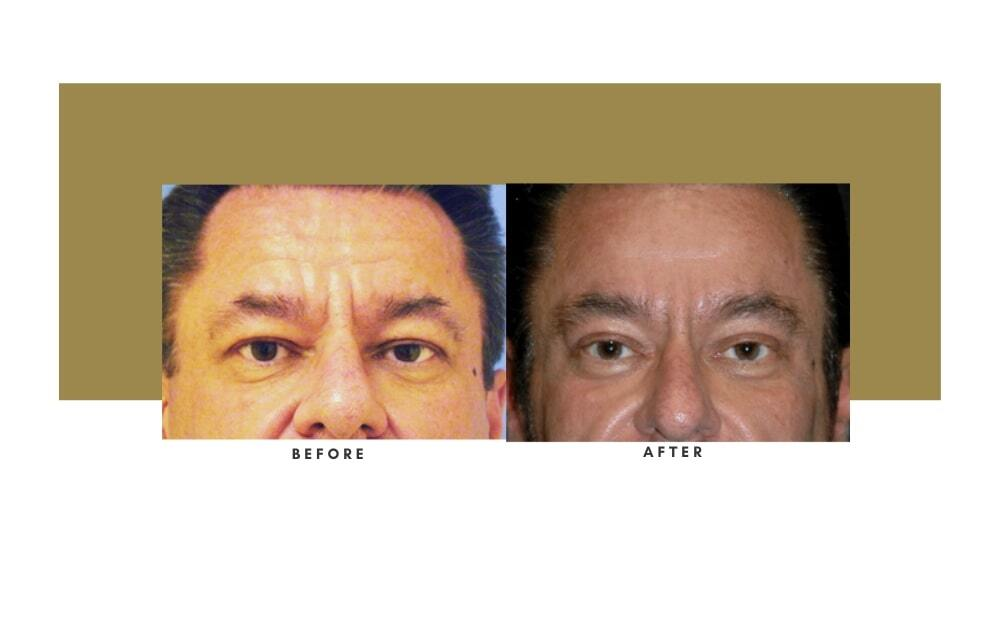 Browlift Before and After 1