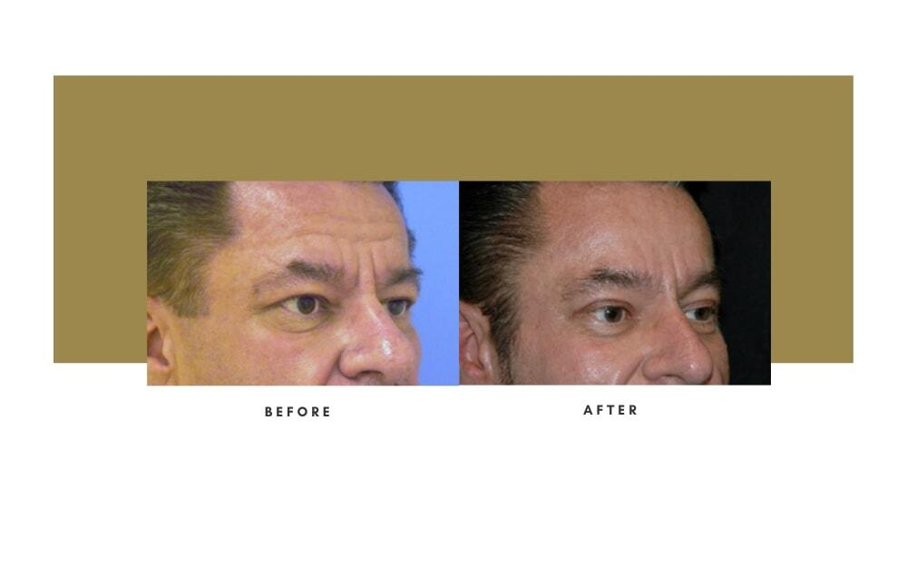 Browlift Before and After 2