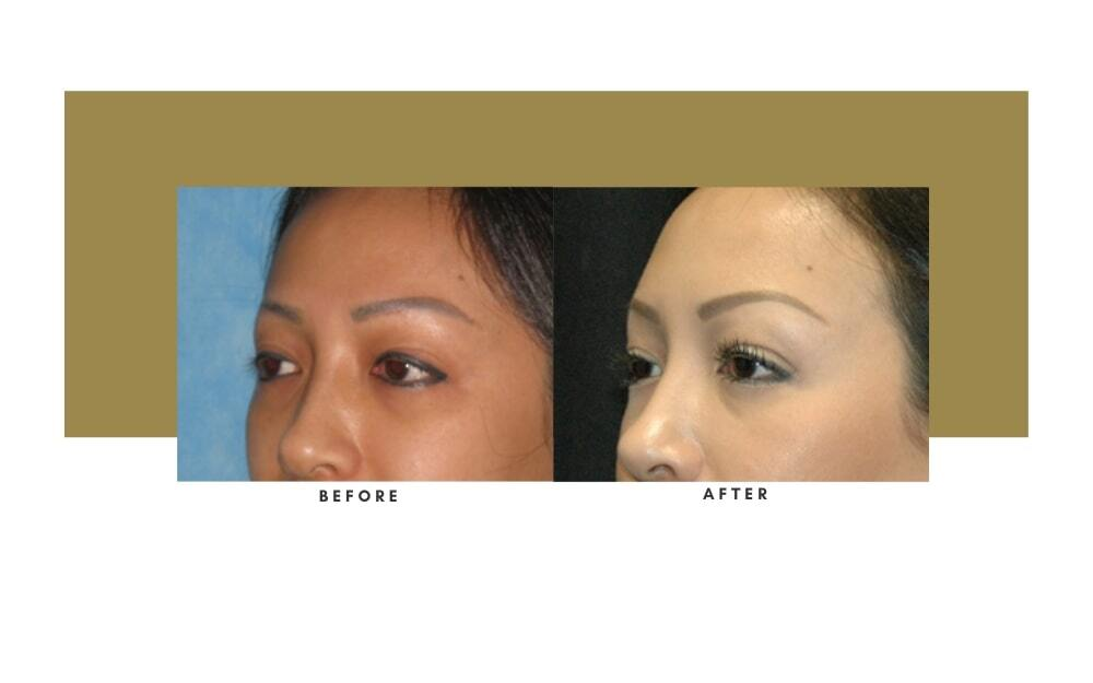 Browlift Before and After 4