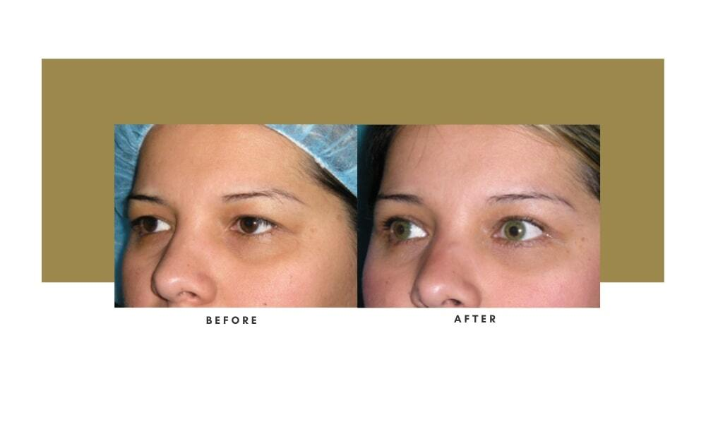 Browlift Before and After 5
