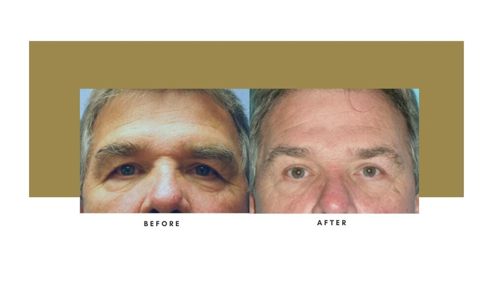 Browlift Before and After 6