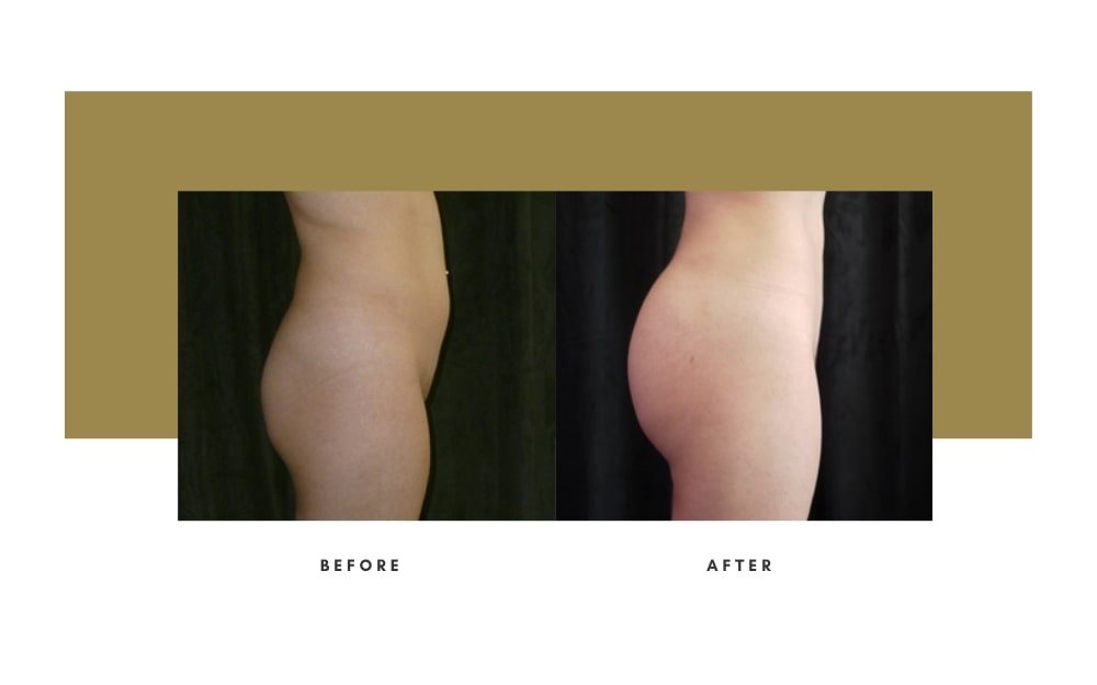 Butt Lift Before and After 1