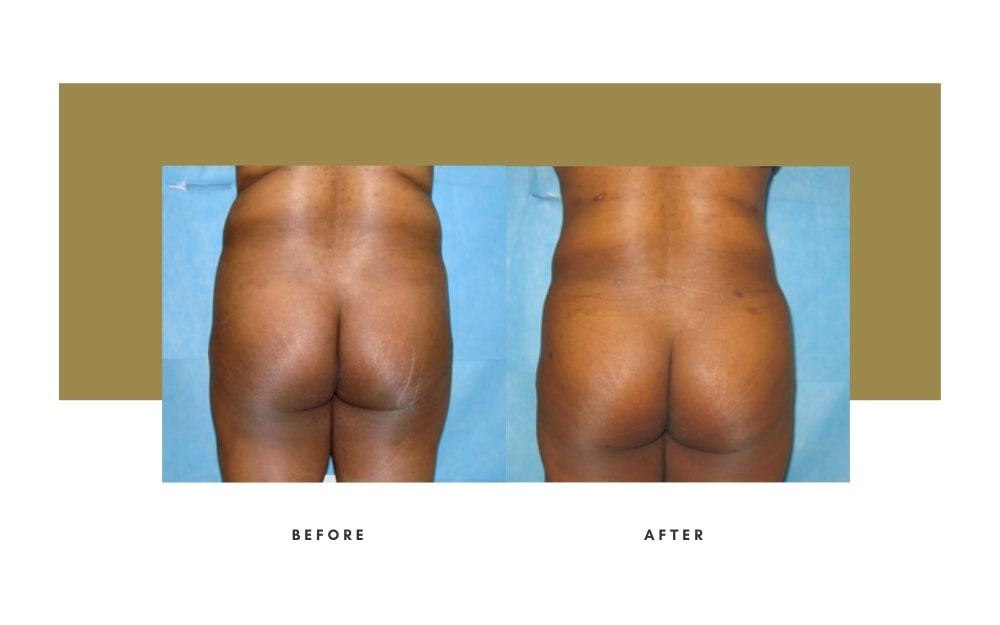 Butt Lift Before and After 10