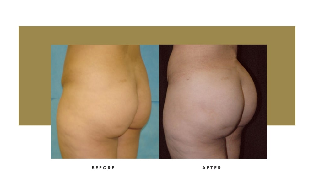 Butt Lift Before and After 12