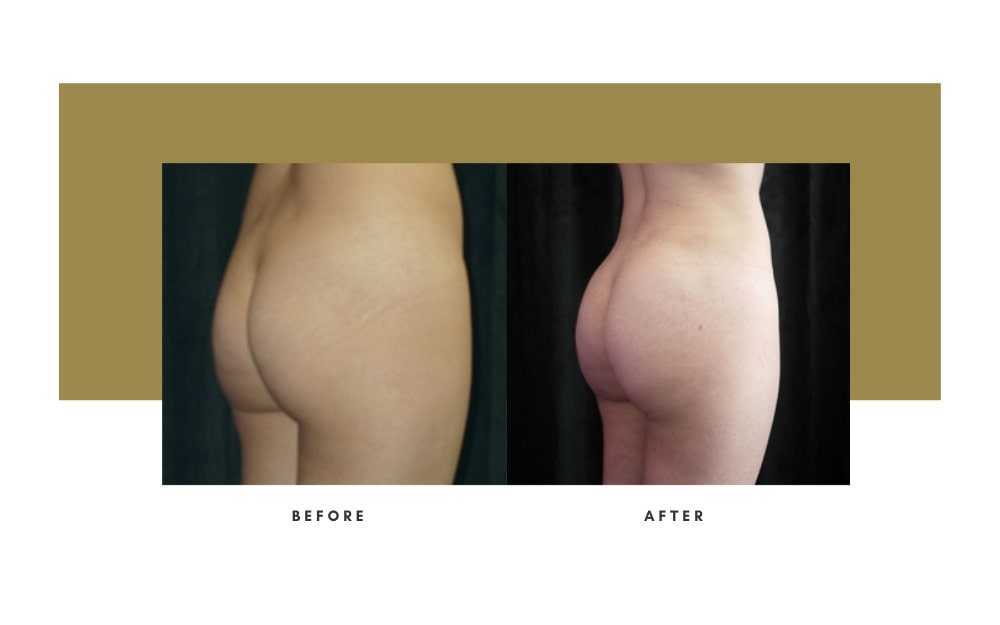 Butt Lift Before and After 2