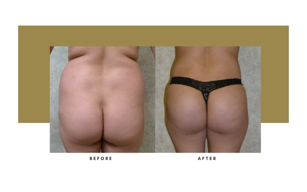 Butt Lift Before and After 3
