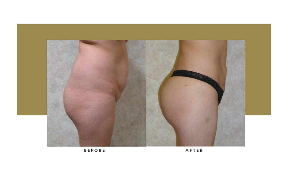 Butt Lift Before and After 4