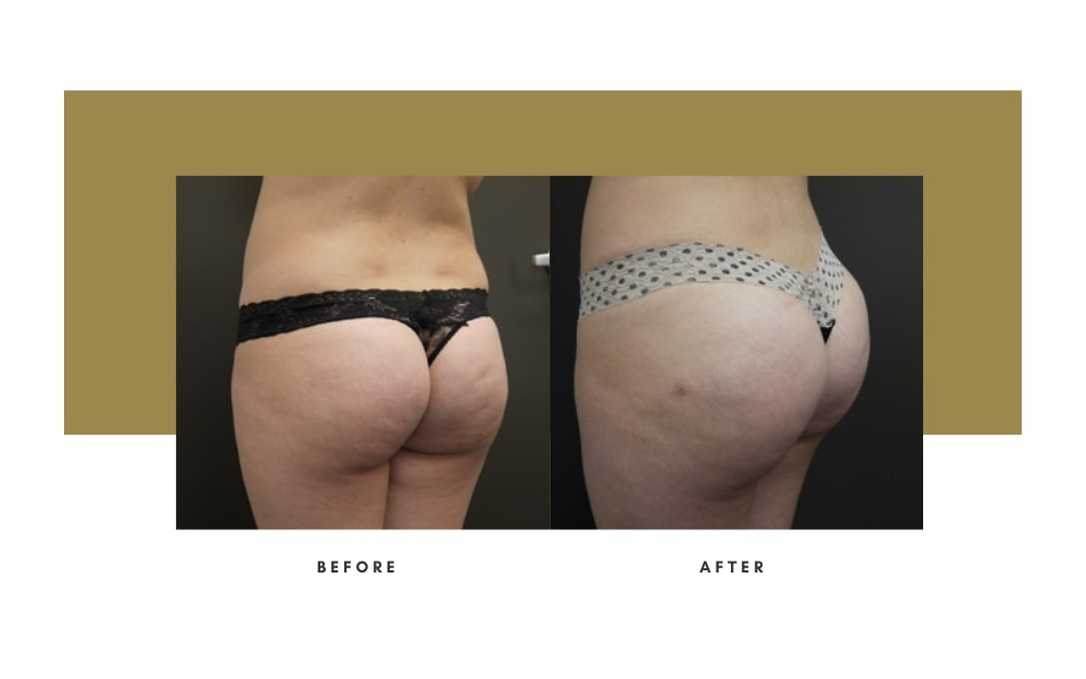Butt Lift Before and After 5