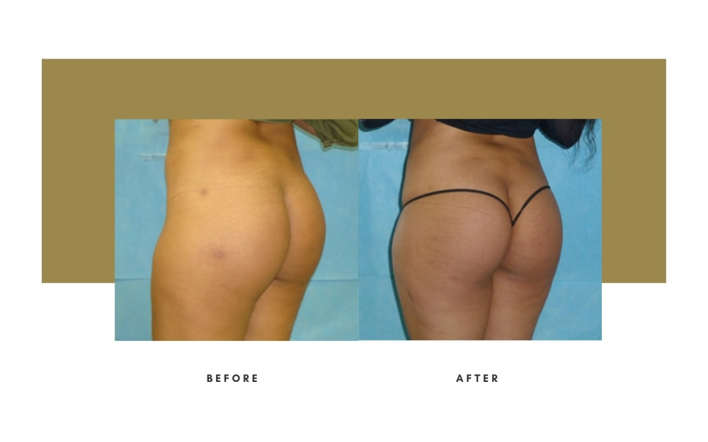 Butt Lift Before and After 7