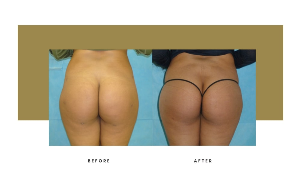 Butt Lift Before and After 8
