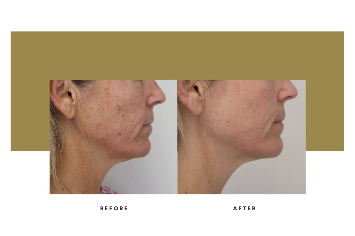 Chemical Peel Before and After 1