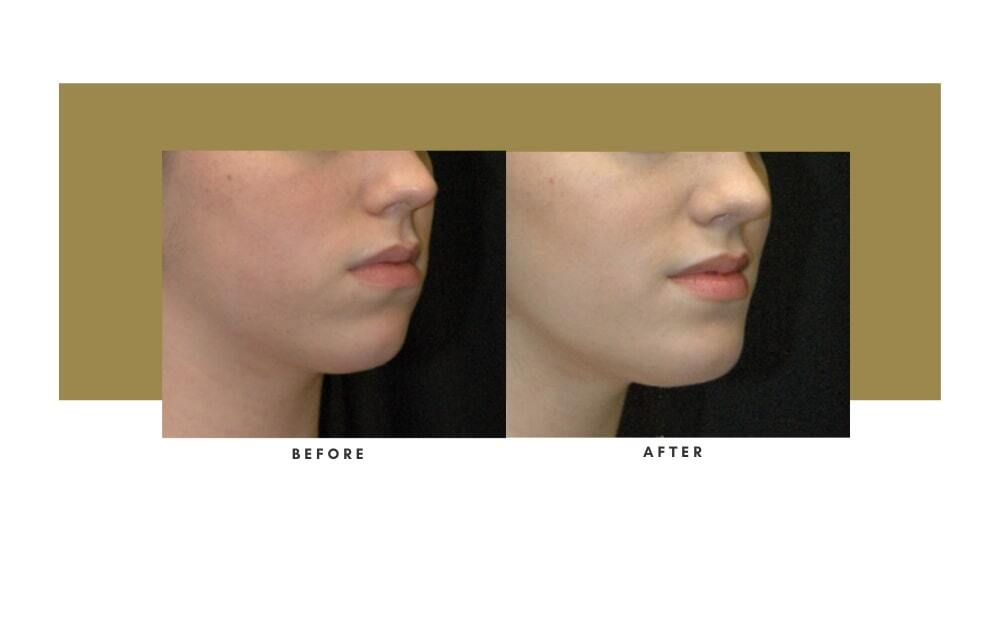 Chin / Cheek Implant Before and After 1