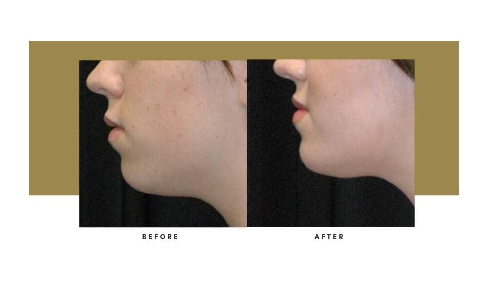 Chin / Cheek Implant Before and After 2