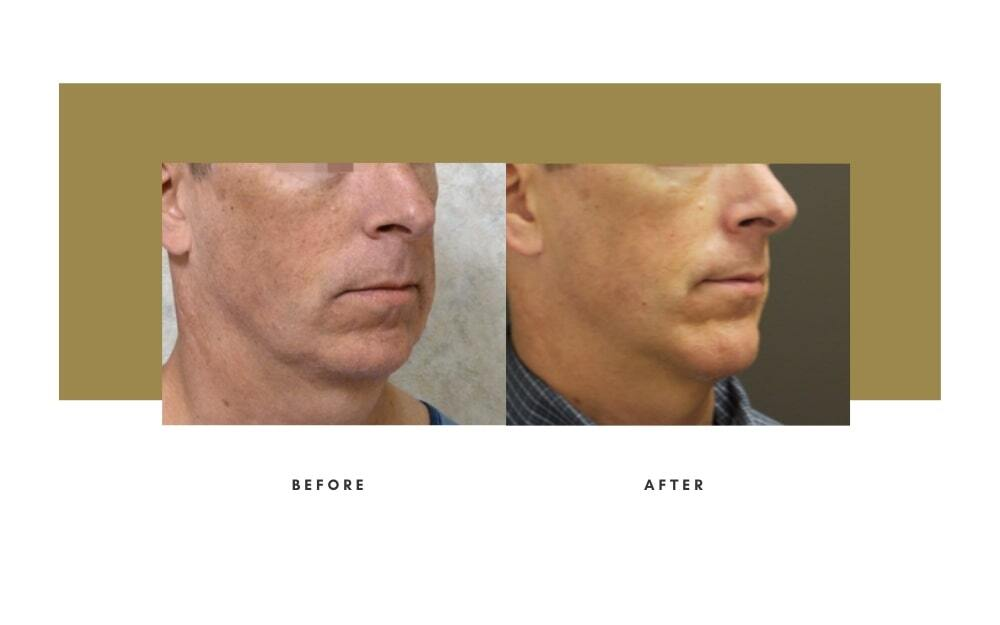 Chin / Cheek Implant Before and After 3