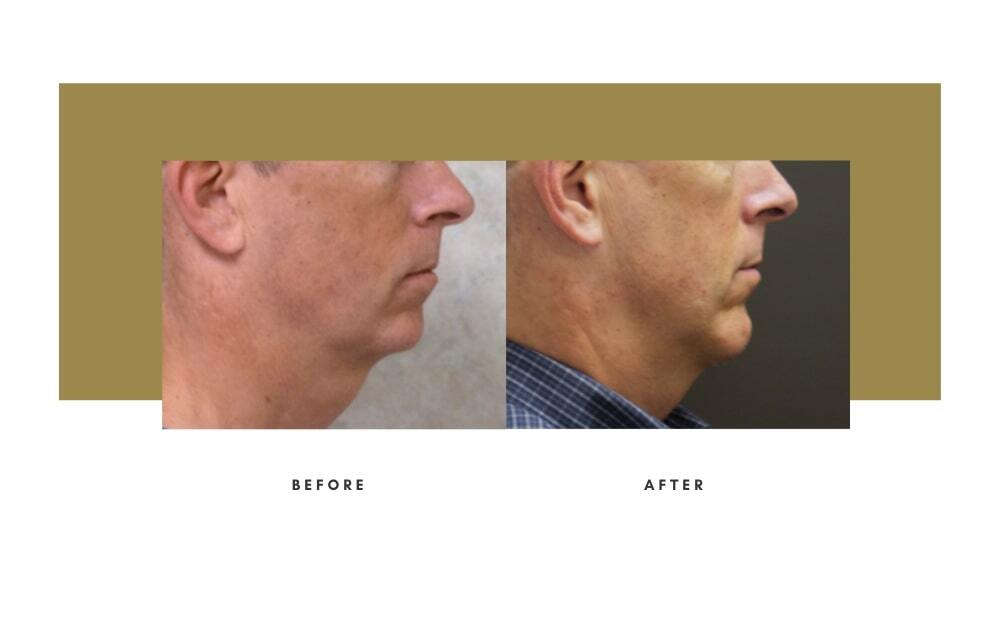 Chin / Cheek Implant Before and After 4