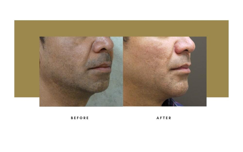Chin / Cheek Implant Before and After 5