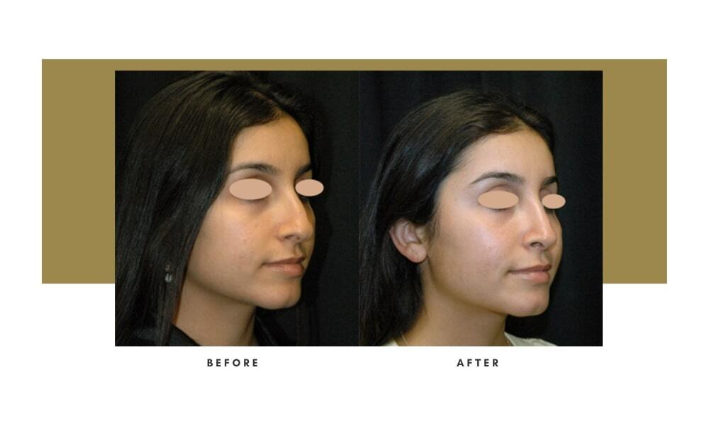 Ethnic Rhinoplasty Before and After 1