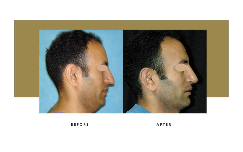 Ethnic Rhinoplasty Before and After 10