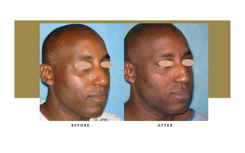 Ethnic Rhinoplasty Before and After 11