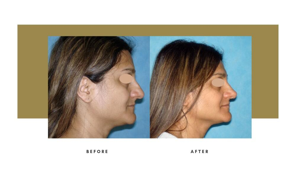 Ethnic Rhinoplasty Before and After 12