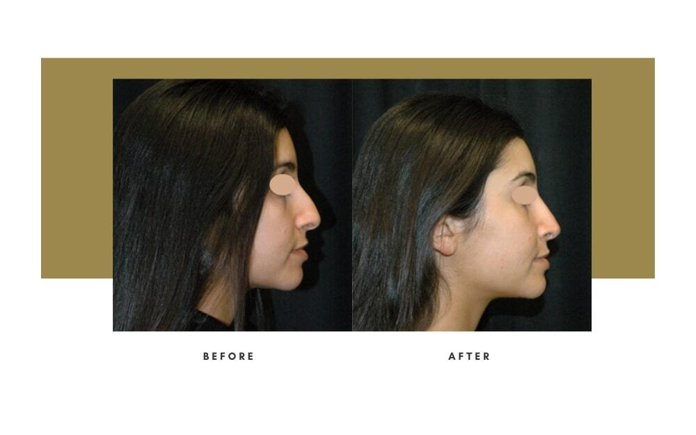 Ethnic Rhinoplasty Before and After 2