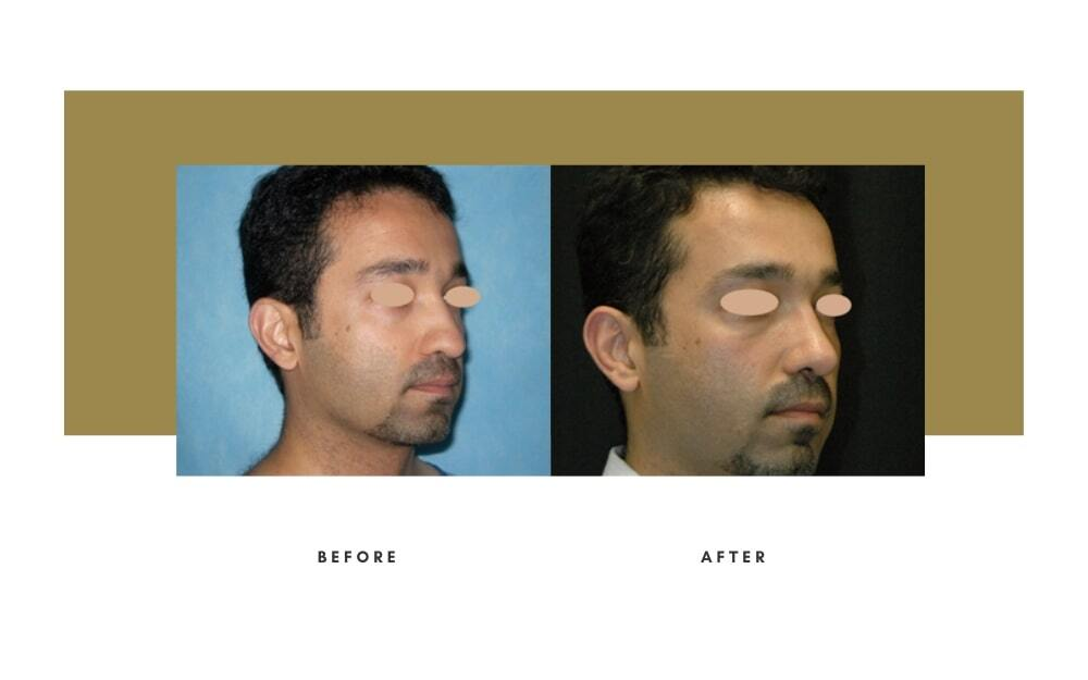 Ethnic Rhinoplasty Before and After 3