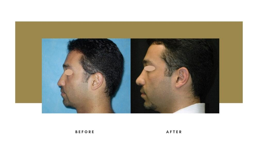 Ethnic Rhinoplasty Before and After 4
