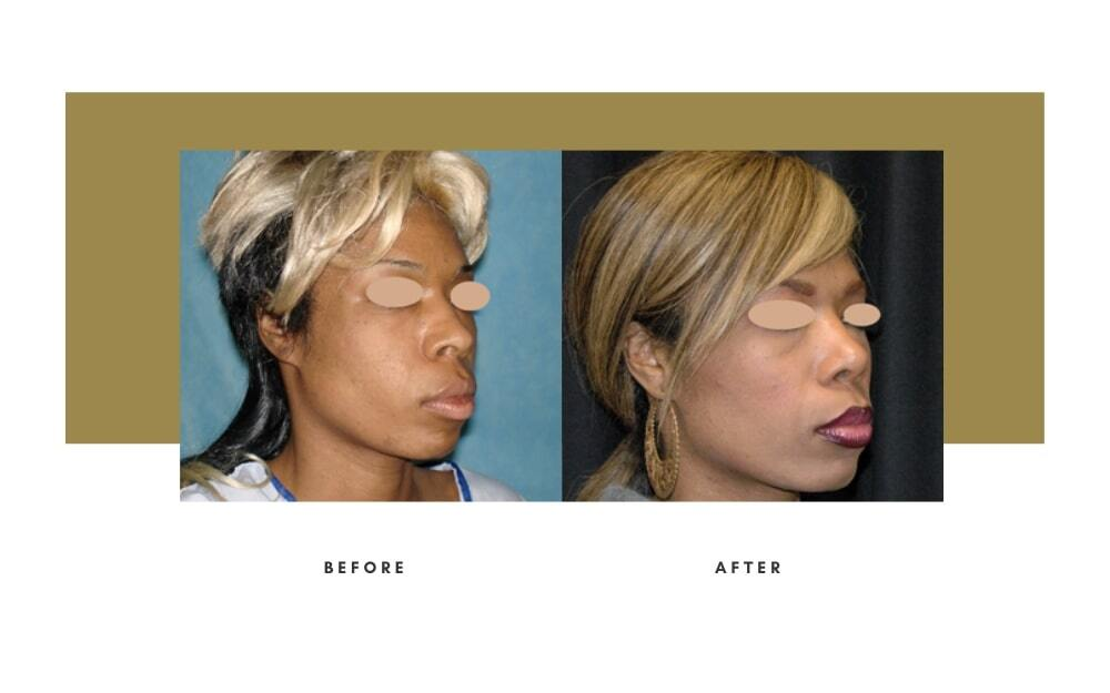Ethnic Rhinoplasty Before and After 5