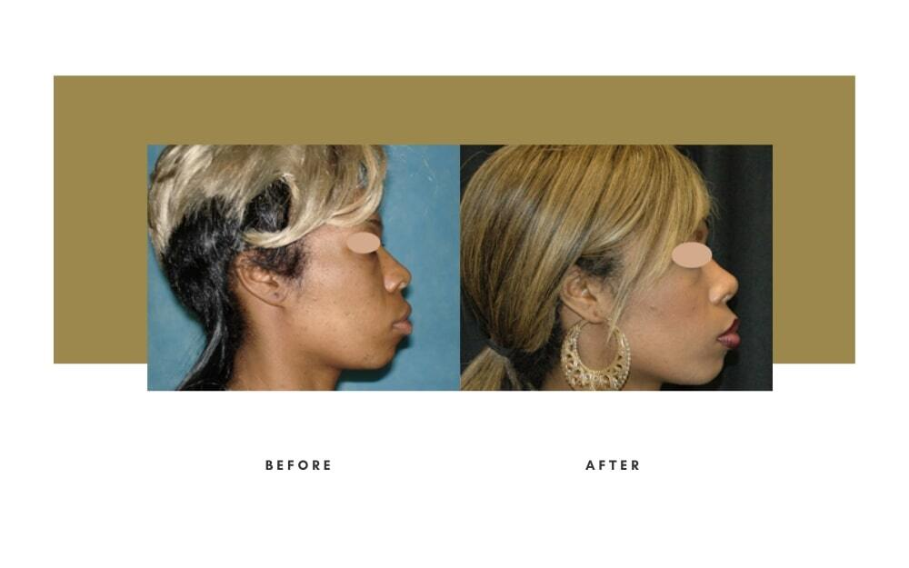 Ethnic Rhinoplasty Before and After 6