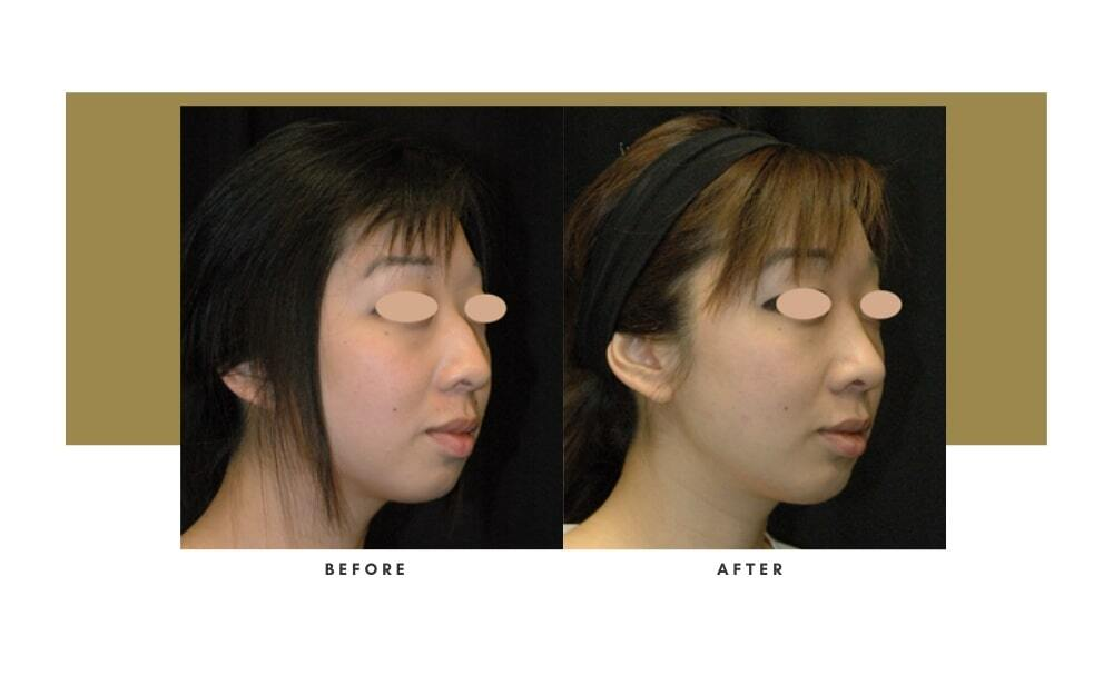 Ethnic Rhinoplasty Before and After 7