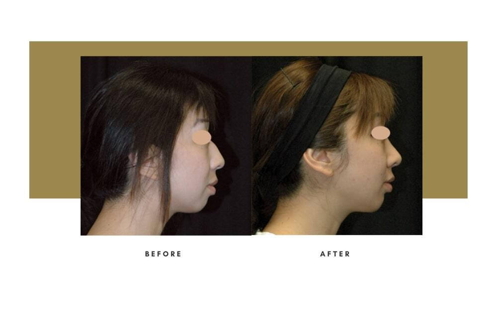 Ethnic Rhinoplasty Before and After 8