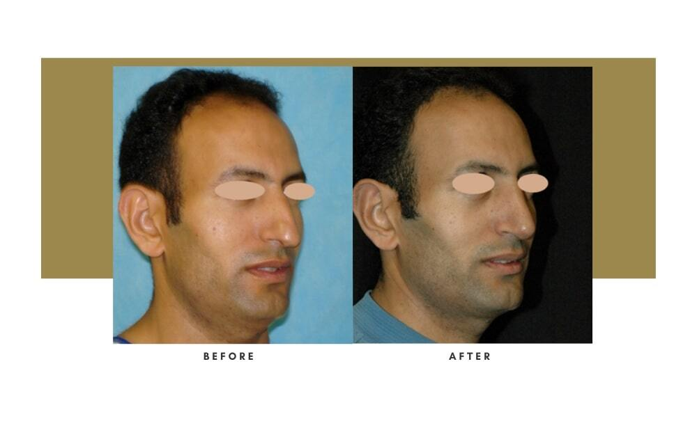 Ethnic Rhinoplasty Before and After 9