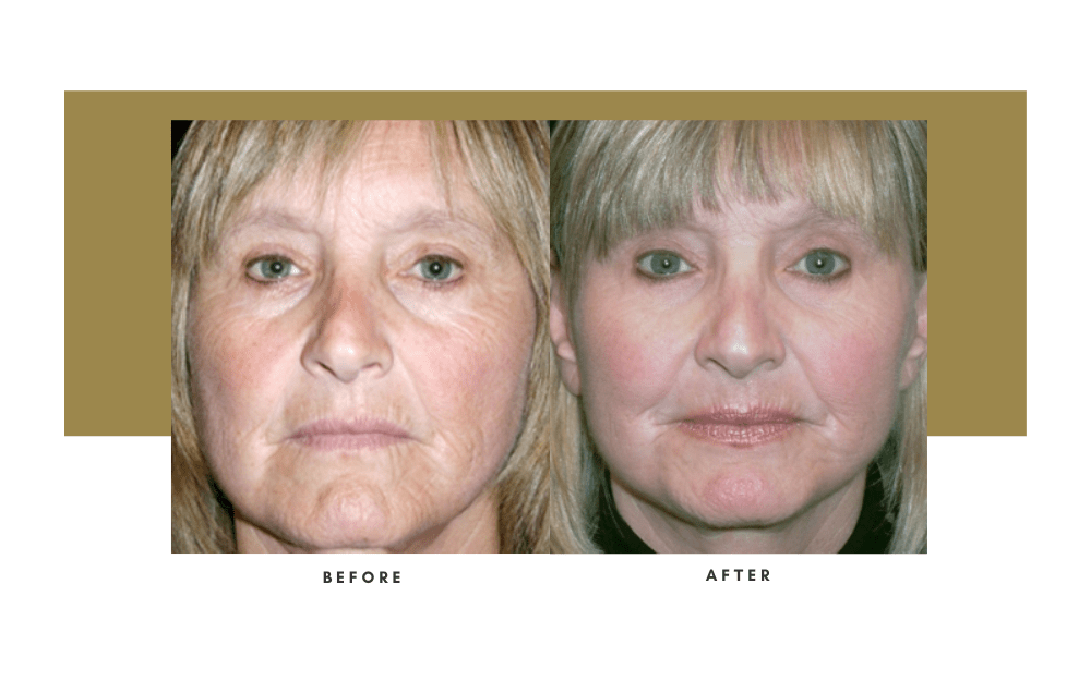 Facelift Before and After 1