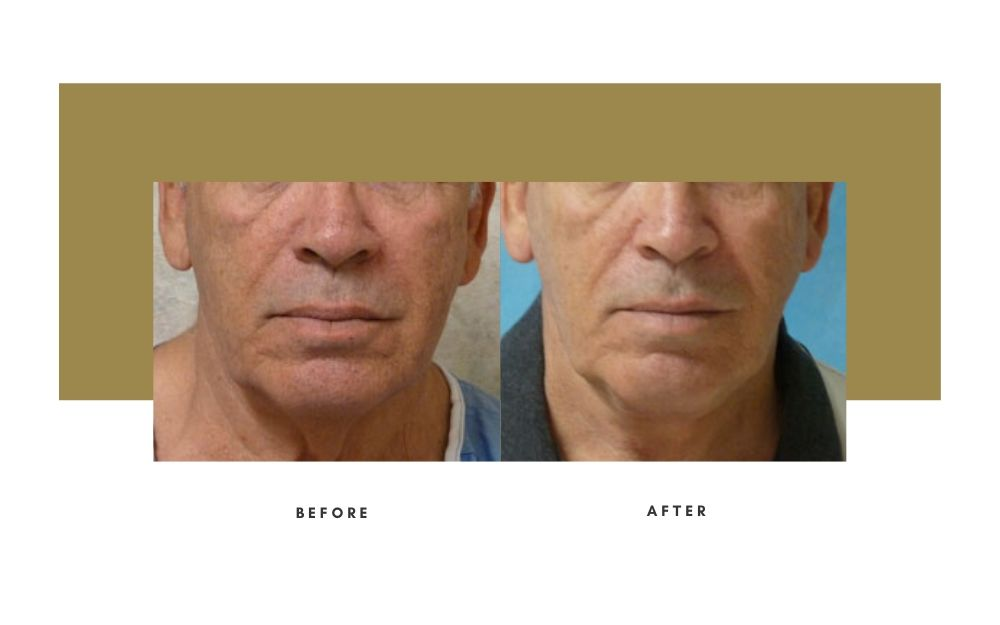 Facelift Before and After 3