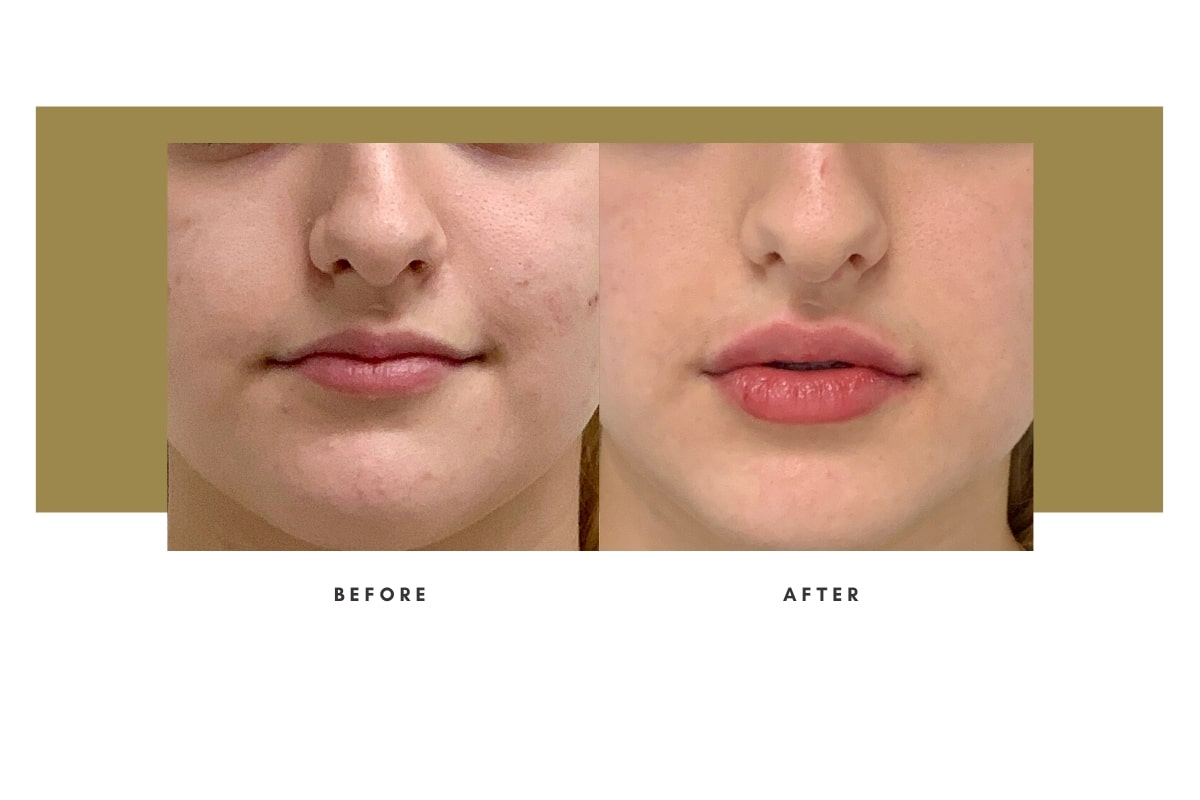 Injectable Filler - Before / After